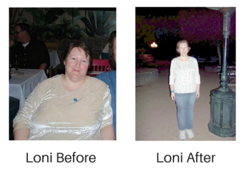 Loni Before & After
